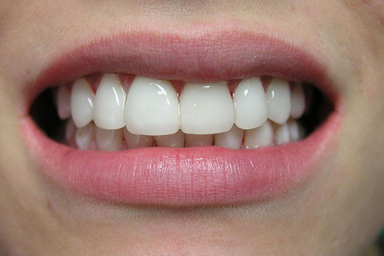 răng toàn sứ zirconia là gì