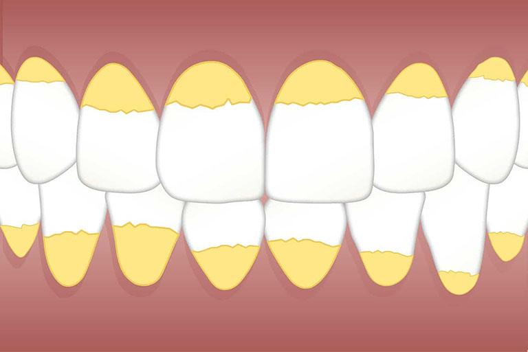 vôi răng là gì