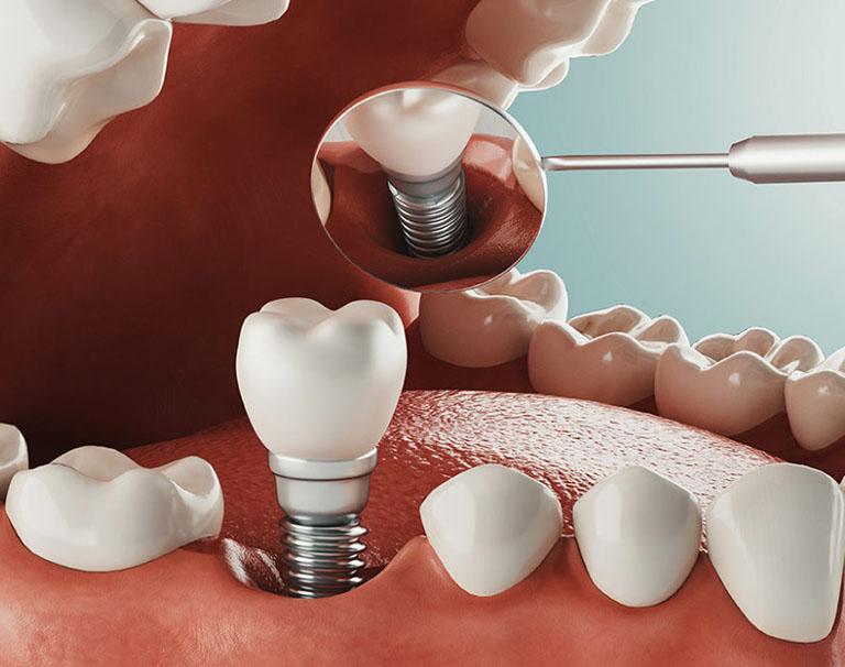 chăm sóc răng sau khi cấy implant