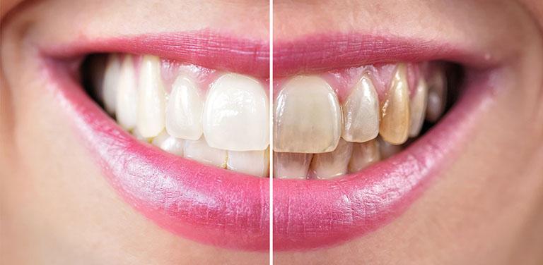 có nên tẩy trắng răng nhiều lần