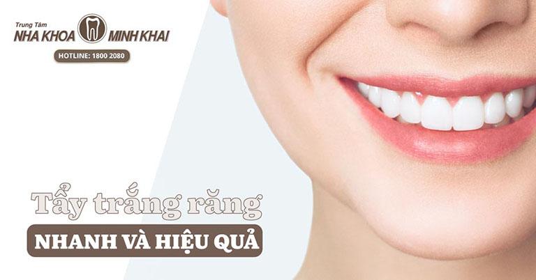 Tẩy trắng răng ở đâu tốt TPHCM