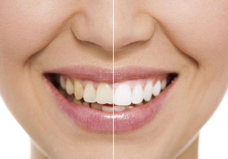 cách dùng thuốc tẩy trắng răng tại nhà