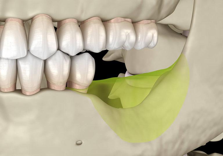 trồng răng implant cho người già