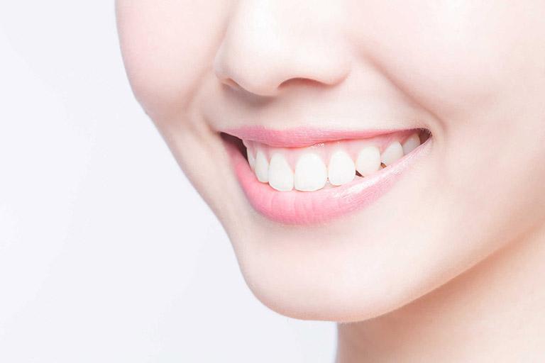 tẩy trắng răng bằng máng có tốt không
