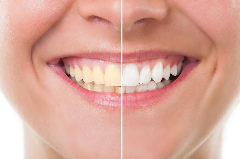 tẩy trắng răng bằng máng tại nhà