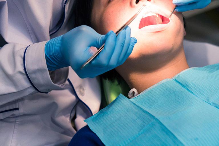 tẩy trắng răng có hại cho răng không