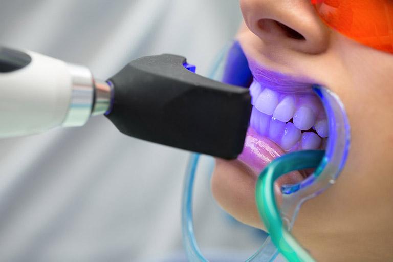 tẩy trắng răng không đều màu