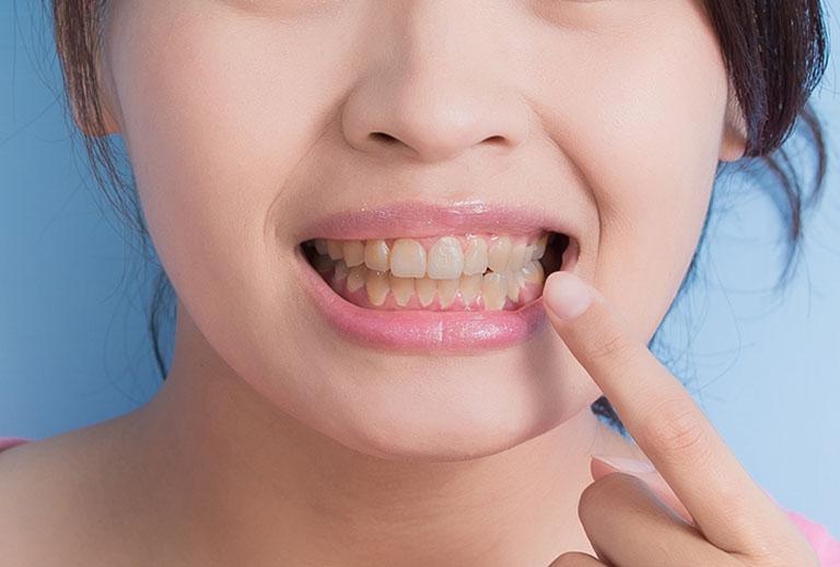 Tẩy trắng răng mấy lần thì trắng