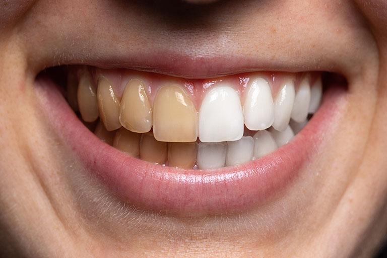 Sau khi tẩy trắng răng bao lâu thì ăn được