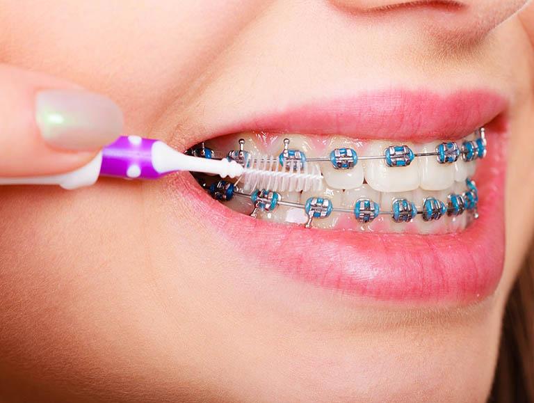 có nên tẩy trắng răng trước khi niềng răng