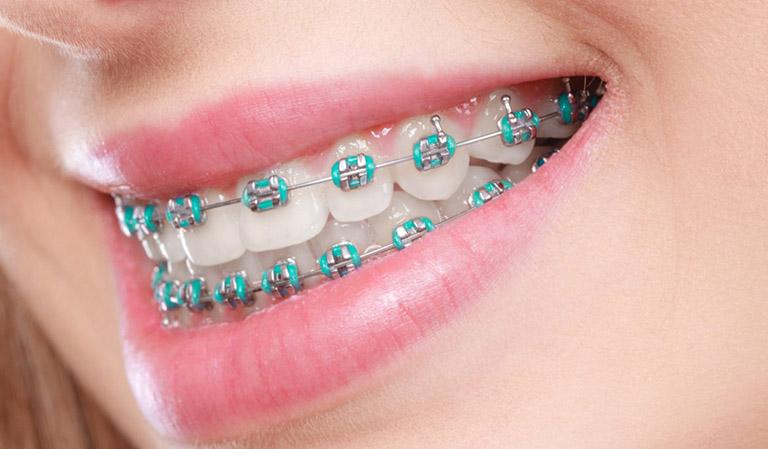 Nên tẩy trắng răng trước hay sau khi niềng