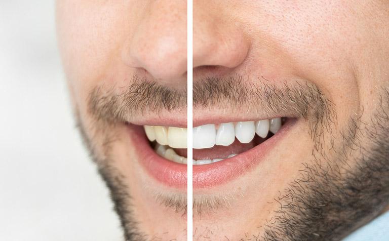 Tẩy trắng răng xong có bị vàng lại không