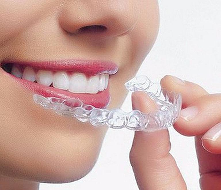 thuốc tẩy trắng răng opalescence có tốt không