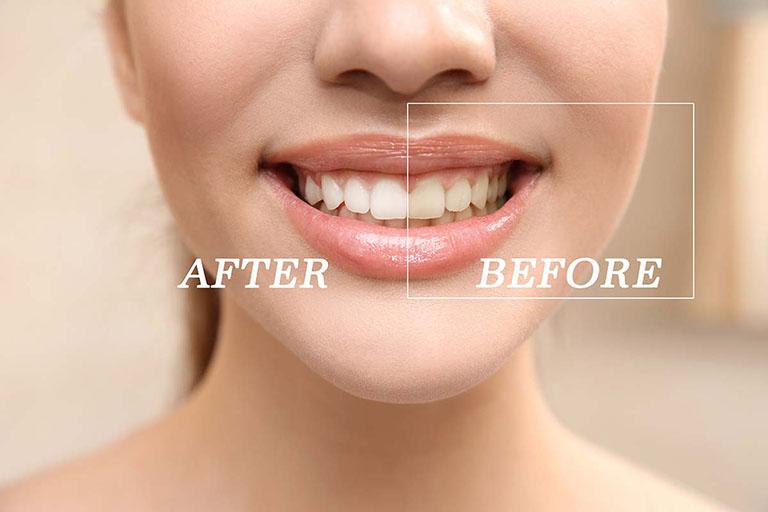 Bột tẩy trắng răng Eucryl Pharmacity