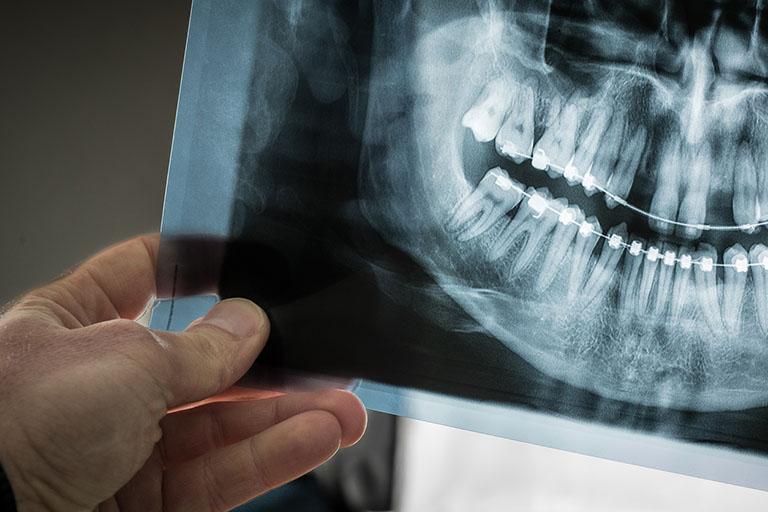 chụp x quang răng ở đâu tphcm