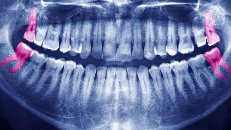 chụp x quang răng khôn