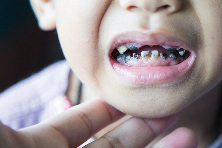 nguyên nhân dẫn đến hôi miệng ở trẻ em