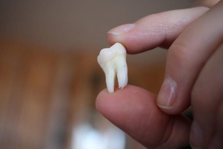 Răng khôn có tác dụng gì