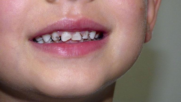 thuốc trị sâu răng cho bé